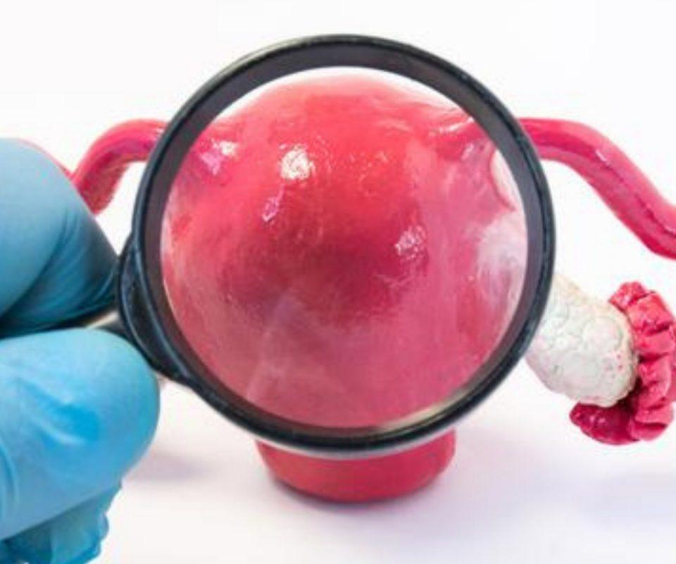 Mengenal Endometritis
