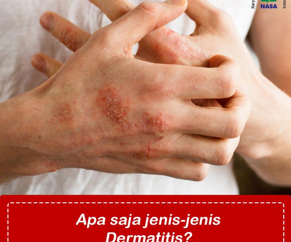 Jenis-jenis Dermartitis