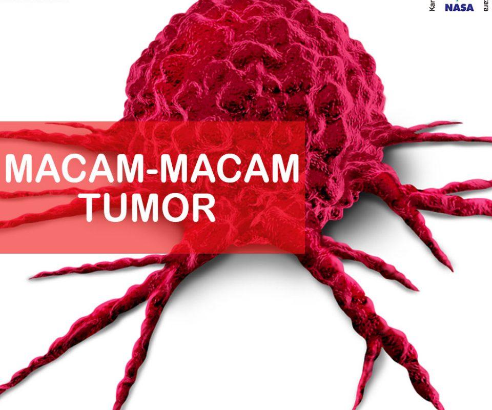 Macam Tumor Dan Tingkat Berbahayanya